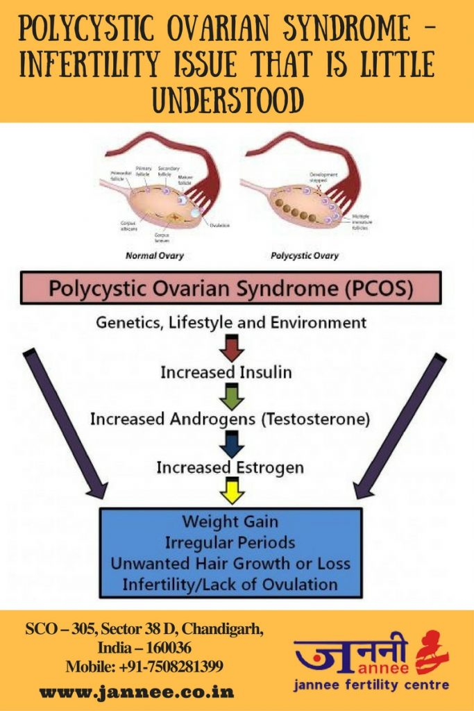 Polycystic Ovarian Syndrome – Infertility Issue That is Little Understood