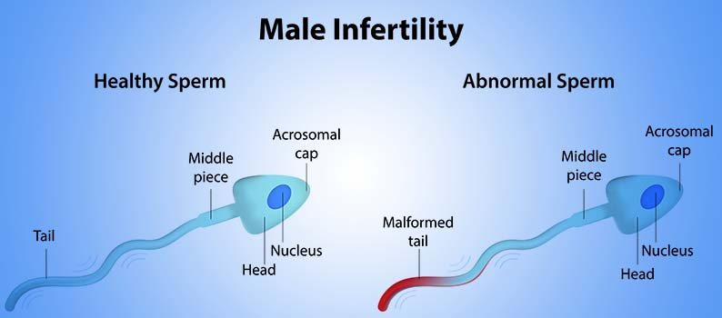 Best infertility clinic in Chandigarh